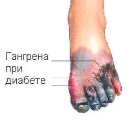 http://s-diabet.ru/wp-content/uploads/2013/10/gangrena-diabet1.jpg