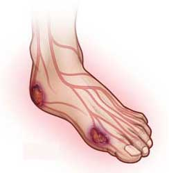 Отек ног при сахарном диабете лечение народными средствами