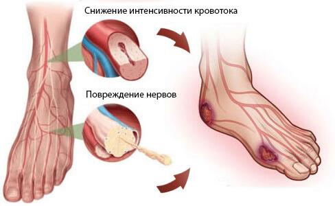 Причина диабетической стопы